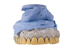 Jaw tooth isolated stock photography