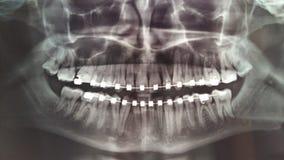 jawbone zdjęcie stock
