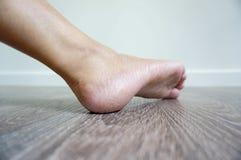Jeden stopa jest w ten sposób sucha kobieta Fotografia Stock