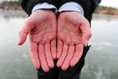 La maladie de Raynaud Image libre de droits