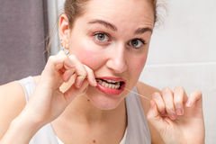 Jeune femme étonnée tenant les dents de soin et de nettoyage de fil dentaire Photos libres de droits