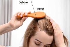 Jeune femme avant et après le traitement de perte des cheveux sur le fond brouillé photographie stock libre de droits