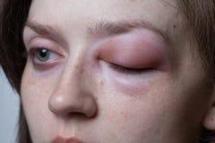 Jeune femme avec la réaction allergique - angioedema images libres de droits