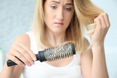 Jeune femme avec le problème de perte des cheveux photo stock