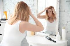 Jeune femme avec le problème de perte des cheveux devant le miroir photo libre de droits