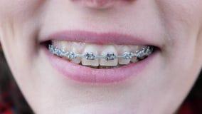 Jeune fille avec des accolades sur des dents regardant l'appareil-photo et le sourire Fin vers le haut Les dents sont sales banque de vidéos