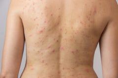 Jeune fille avec l'acné, avec les taches rouges et blanches sur le dos Photographie stock libre de droits