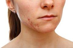 Jeune fille avec le problème de peau Photographie stock libre de droits