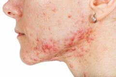 Comme purifier au maximum les pores de la personne