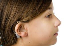 Jeune fille s'usant une prothèse auditive Photos libres de droits