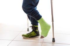 Jeune homme avec une cheville cassée et une fonte de jambe Image libre de droits