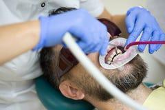 Jeune homme choisissant la couleur des dents aux dents du patient de examen de Dentist de dentiste dans la clinique Jeune homme d photo libre de droits