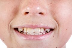 Jeune visage caucasien du ` s d'adolescent image stock