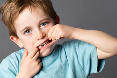 6-jähriger alter Junge, der seinen fehlenden Zahn für Gesundheitswesen zeigt Stockfotografie