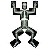 Jigsaw human x-ray ( whole body ) Stock Photos