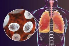 Jirovecii ou carinii de Pneumocystis dans des poumons humains Photos stock