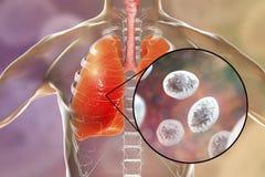 Jirovecii Pneumocystis, оппортунистический грибок который причиняет пневмонию в пациентах с ВИЧ иллюстрация штока
