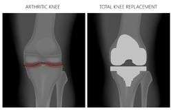 Joelho _Arthritic do menisco e substituição total do joelho ilustração do vetor