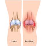 Joint bleeds in hemophilia stock illustration
