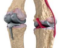 Joint de charnière de genou et de titane illustration libre de droits