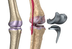 Joint de charnière de genou et de titane illustration de vecteur