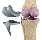 Joint de charnière de genou et de titane D'isolement illustration libre de droits