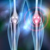 Joint pain. Joint anatomy beautiful abstract background stock illustration