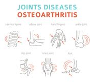 Joints diseases. Arthritis, osteoarthritis symptoms, treatment i. Con set. Medical infographic design. Vector illustration royalty free illustration