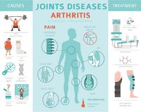Joints diseases. Arthritis symptoms, treatment icon set. Medical. Infographic design. Vector illustration stock illustration