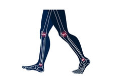 Joints leg injury concept frontal view. On white background Royalty Free Stock Images