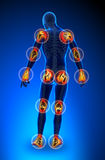 Joints pain - full figure. All Stock Images