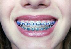 Joli sourire avec des supports photo libre de droits