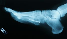 Jones Fracture Repair royalty free stock photography