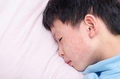Jong kind met uitbarsting die op bed liggen royalty-vrije stock foto