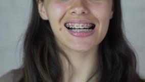 Jong meisje die met steunen op tanden camera en het glimlachen bekijken Sluit omhoog stock video