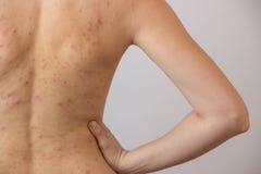 Jong meisje met acne, met rode en witte vlekken op de rug Royalty-vrije Stock Foto's