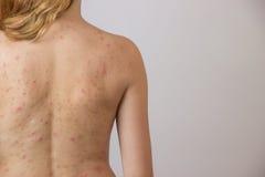 Jong meisje met acne, met rode vlekken op de rug Stock Afbeeldingen