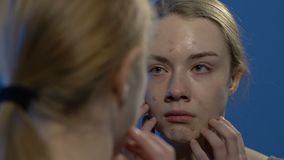 Jong schreeuwend meisje die gezichtsacne bekijken in spiegel, die aan huidproblemen lijden stock video