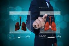 Jonge arts die longen tonen Royalty-vrije Stock Afbeelding