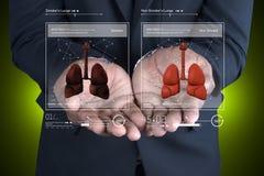 Jonge arts die longen tonen Stock Fotografie
