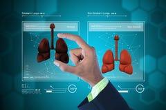 Jonge arts die longen tonen Royalty-vrije Stock Afbeeldingen