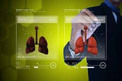 Jonge arts die longen tonen Royalty-vrije Stock Foto's