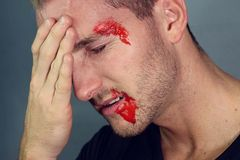 Jonge die mens in een ongeval wordt verwond Royalty-vrije Stock Foto's