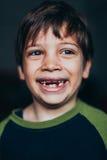 Jonge jongen die met ontbrekende tanden grijnzen Stock Afbeelding