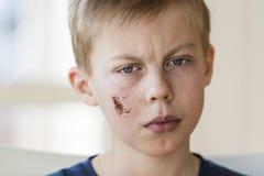 Jonge jongen met gezichtsverwonding Stock Afbeeldingen