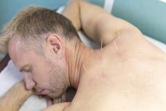 Jonge mens die acupunctuurbehandeling, close-up krijgen stock foto's