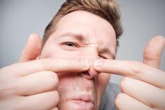 Jonge mens die een pukkel, mensen` s skincare concept proberen te drukken royalty-vrije stock foto