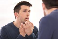 Jonge mens die koortsblaasjeroom op lippen toepassen stock foto's