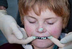 Jonge rugbyspeler die die een vorm hebben voor een gumshield wordt genomen Stock Foto's