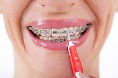 Jonge vrouw die met steunen haar tanden borstelen royalty-vrije stock afbeelding